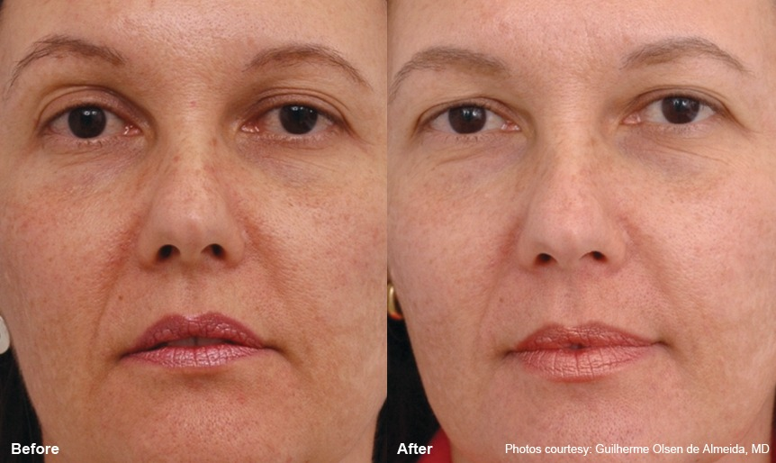 Before and after, notice the texture change and the lessening of the lines by her nose and mouth.