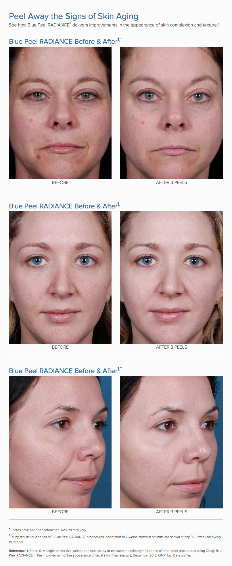 Obagi Blue Peel Results