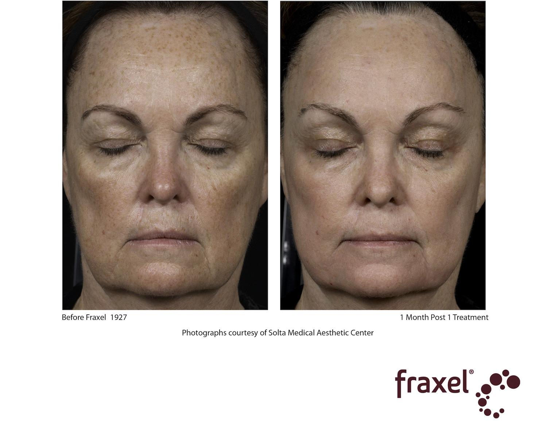 fraxel face