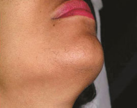 gentle-max-pro-Laser-hair-removal-on-the-chin-after