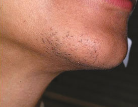 gentle-max-pro-Laser-hair-removal-on-the-chin-before