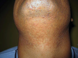 gentle max pro Laser hair removal on the neck after