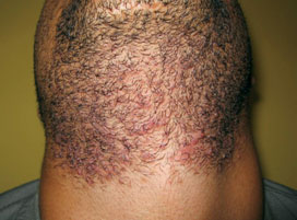 gentle max pro Laser hair removal on the neck before