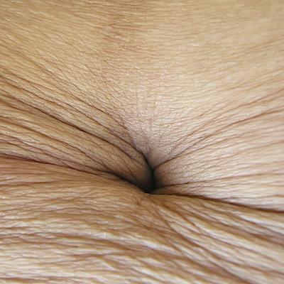 wrinkly navel